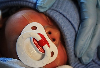 Oral mechanics of premature babies not to be stimulated too ealry by pacifiers.